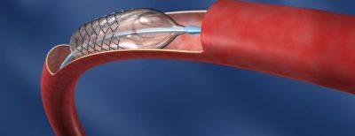 αγγειοπλαστική καρδιολόγος κοντός βασίλειος ψυχικό