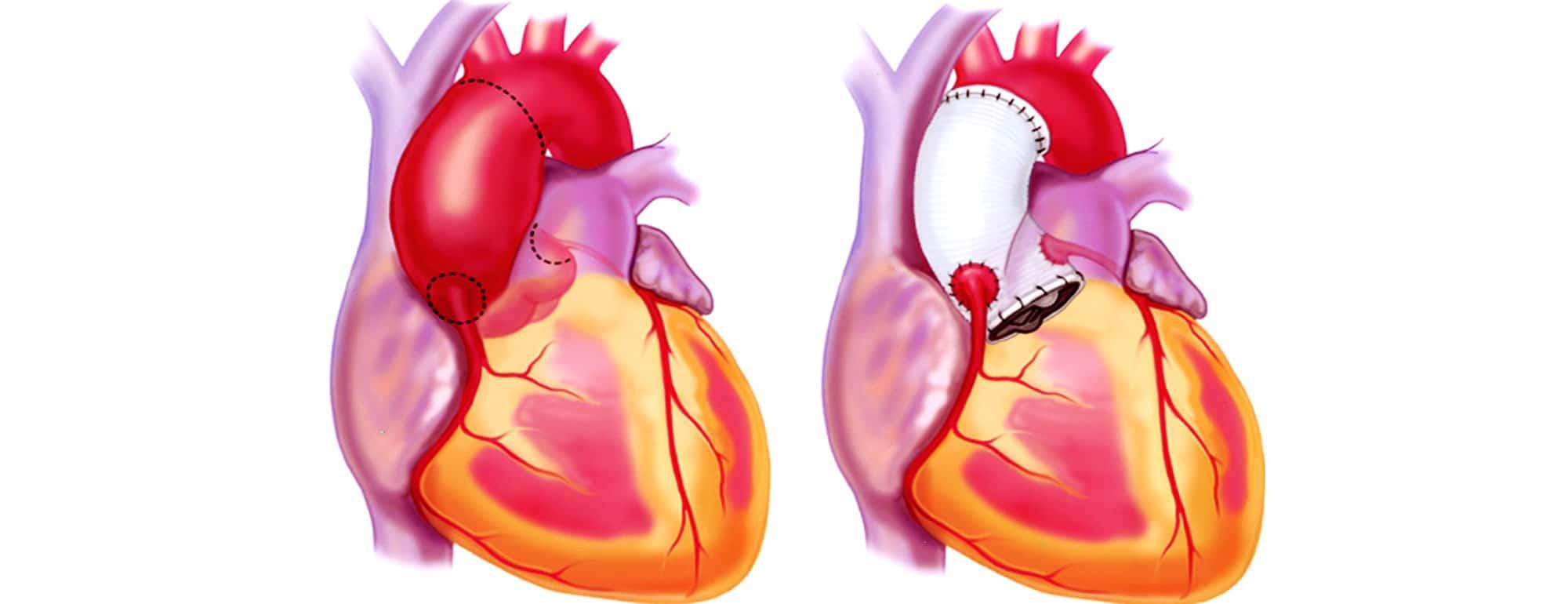 ανεύρυσμα καρδιολόγος κοντός βασίλειος ψυχικό