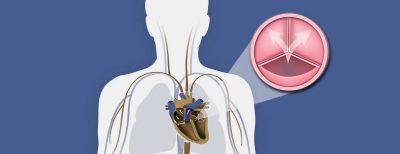 στένωση αορτικής βαλβίδας καρδιολόγος κοντός βασίλειος ψυχικό