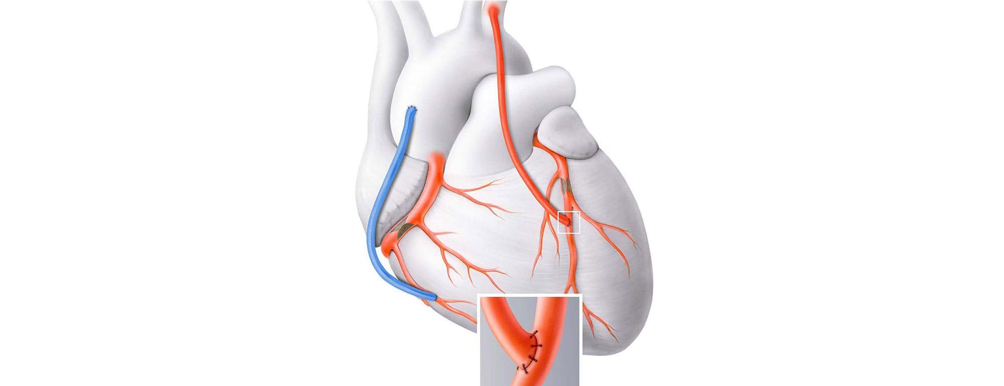 bypass καρδιολόγος κοντός βασίλειος ψυχικό